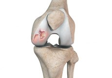 Chondral or Articular Cartilage Defects